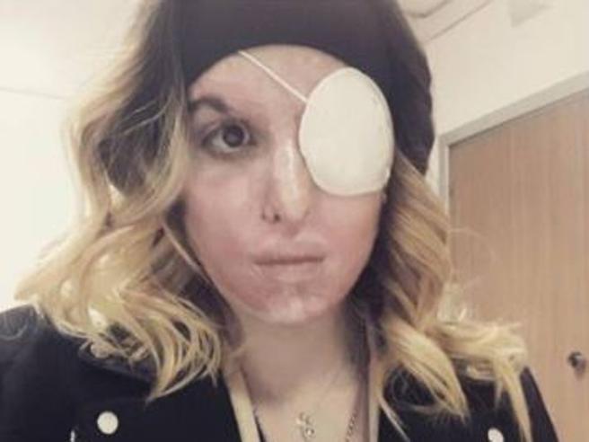 «Meritavi l'acido»  denunciati due haters di Jessica Notaro